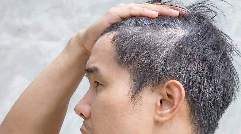 Man showing his scalp