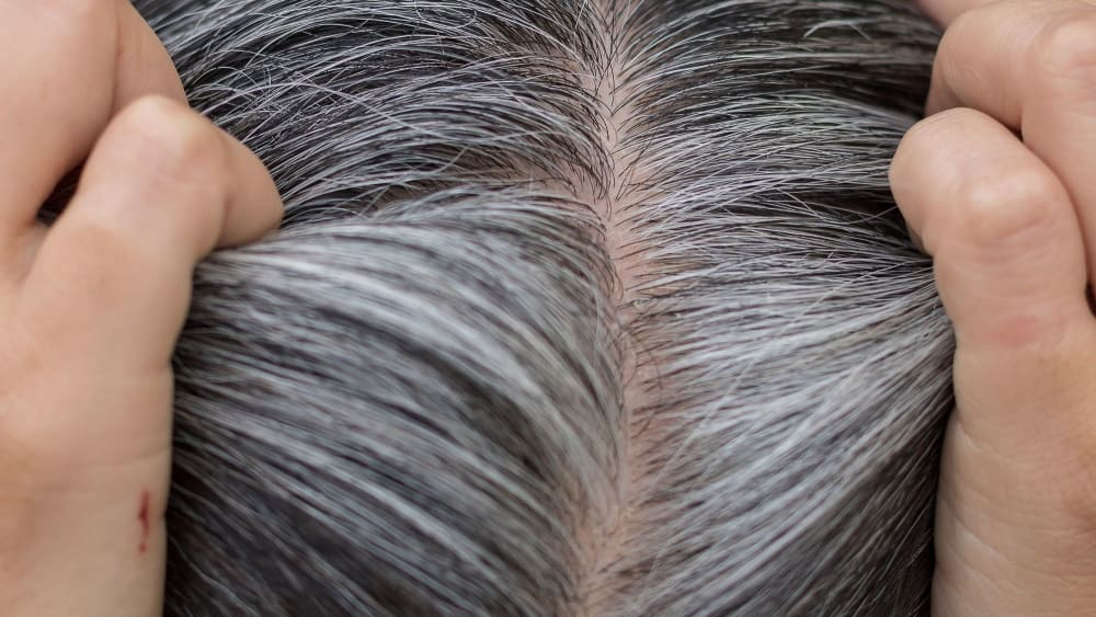 showing white hair growth